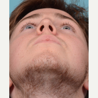 18-24 year old man treated with Rhinoplasty/Septoplasty before 3092665