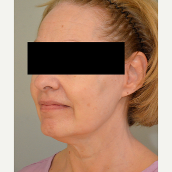 55-64 year old woman treated with Non-Surgical Neck Lift before 2714202