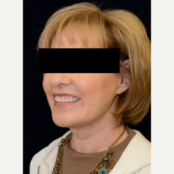 55-64 year old woman treated with Non-Surgical Neck Lift after 2714202