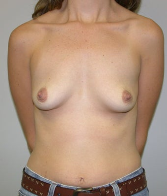Breast Augmentation before 574610