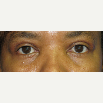 35-44 year old woman treated with Eyelid Surgery after 3305787