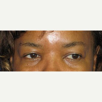 35-44 year old woman treated with Eyelid Surgery before 3305787