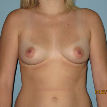 25-34 year old woman treated with Breast Augmentation before 3099471