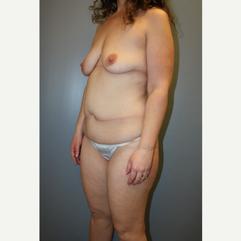 35-44 year old woman treated with Mommy Makeover before 3708811