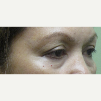55-64 year old woman treated with Eye Bags Treatment before 3220065