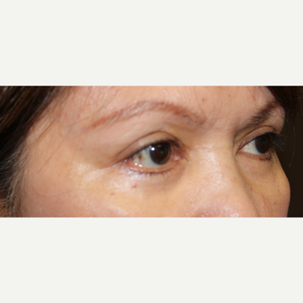 55-64 year old woman treated with Eye Bags Treatment after 3220065