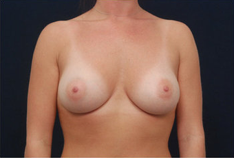 Breast Augmentation after 282443