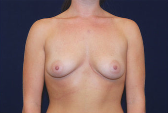 Breast Augmentation before 282443