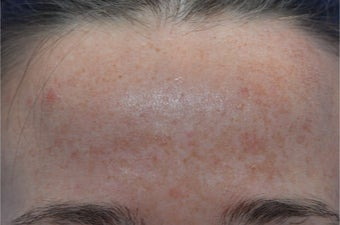 25-34 year old woman treated with Laser Treatment before 3141079