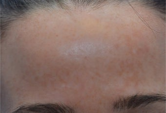 25-34 year old woman treated with Laser Treatment after 3141079