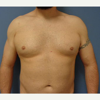 35-44 year old man treated with Male Breast Reduction before 3747180