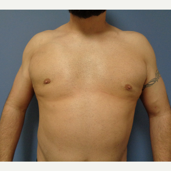 35-44 year old man treated with Male Breast Reduction after 3747180