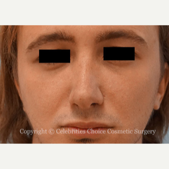 25-34 year old man treated with Rhinoplasty after 3013559
