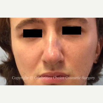 25-34 year old man treated with Rhinoplasty before 3013559