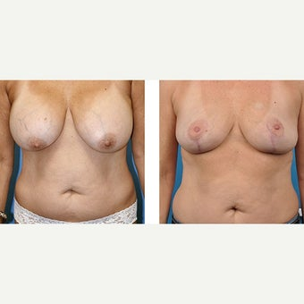 50 year old woman treated with Breast Implant Removal. before 2524187