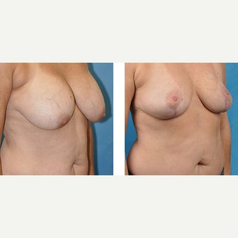 50 year old woman treated with Breast Implant Removal. after 2524187