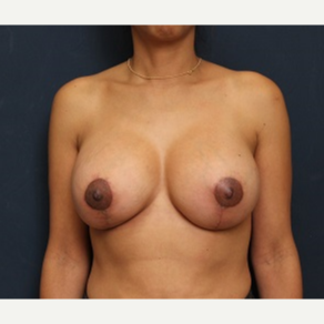 35-44 year old woman treated with Breast Lift with Implants after 3344003