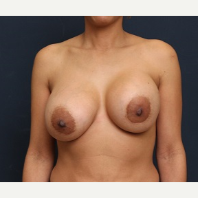 35-44 year old woman treated with Breast Lift with Implants before 3344003