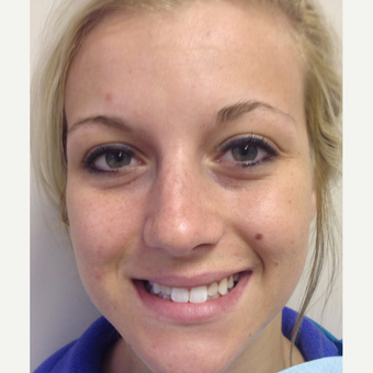 18-24 year old woman treated with Porcelain Veneers before 2699884