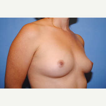 25-34 year old woman treated with Breast Augmentation before 3763033