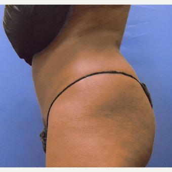 35-44 year old woman treated with Liposuction after 3366109