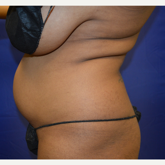 35-44 year old woman treated with Liposuction before 3366109