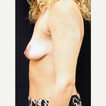 22 year old woman treated with Breast Lift before 3064281