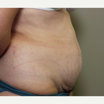 45-54 year old woman treated with Tummy Tuck before 3153874