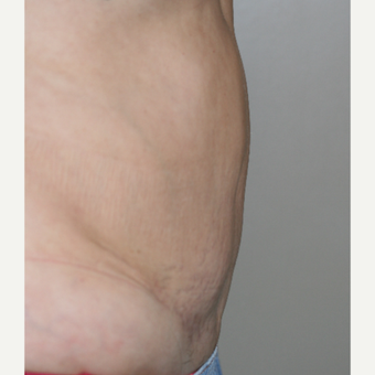 45-54 year old woman treated with Tummy Tuck after 3153874