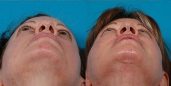 47-year-old woman treated with Rhinoplasty. after 3287830