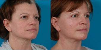 47-year-old woman treated with Rhinoplasty. before 3287830
