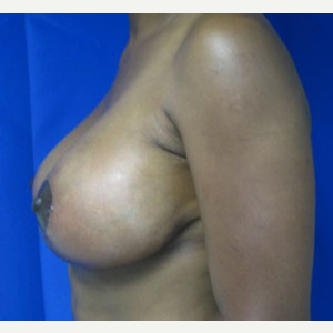 45-54 year old woman treated with Breast Lift after 3055020