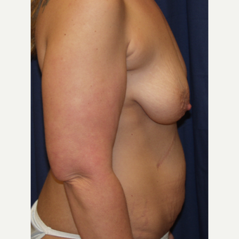 35-44 year old woman treated with Breast Lift with Implants before 3762921
