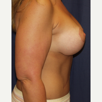 35-44 year old woman treated with Breast Lift with Implants after 3762921