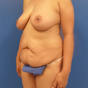 44 y.o. female–Mommy Makeover, Breast Lift w/ Silicone Style 15 421cc & Abdominoplasty (Tummy Tuck) before 3089160