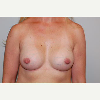 35-44 year old woman treated with Breast Augmentation after 3129676