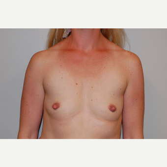 35-44 year old woman treated with Breast Augmentation before 3129676