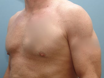 37 Year Old Fit Male Treated For Chest Flatness before 1440046