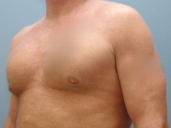 37 Year Old Fit Male Treated For Chest Flatness after 1440046