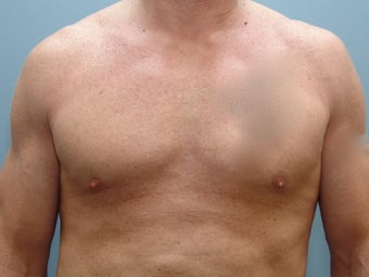 37 Year Old Fit Male Treated For Chest Flatness 1440046