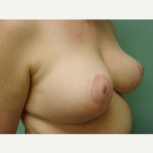 45-54 year old woman treated with Breast Lift after 3168244