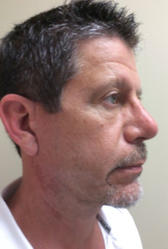 55-64 year old man treated with Mini Facelift 3371337