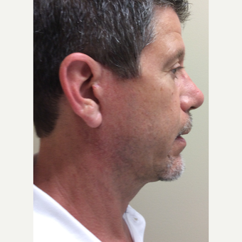 55-64 year old man treated with Mini Facelift after 3371337