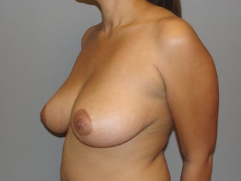 29 year old; Breast reduction 1066874