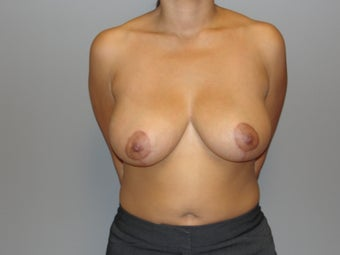 29 year old; Breast reduction after 1066874