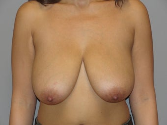 29 year old; Breast reduction before 1066874