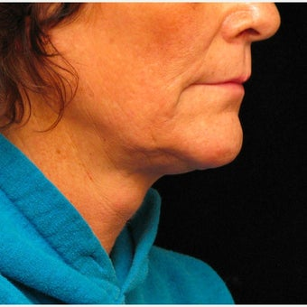 35-44 year old woman treated with Kybella after 2435324