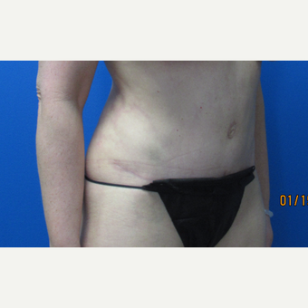 42 year old woman Tummy Tuck after 3703658