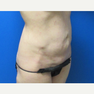 42 year old woman Tummy Tuck before 3703658