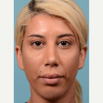 25-34 year old woman treated with Rhinoplasty and chin implant after 3064703